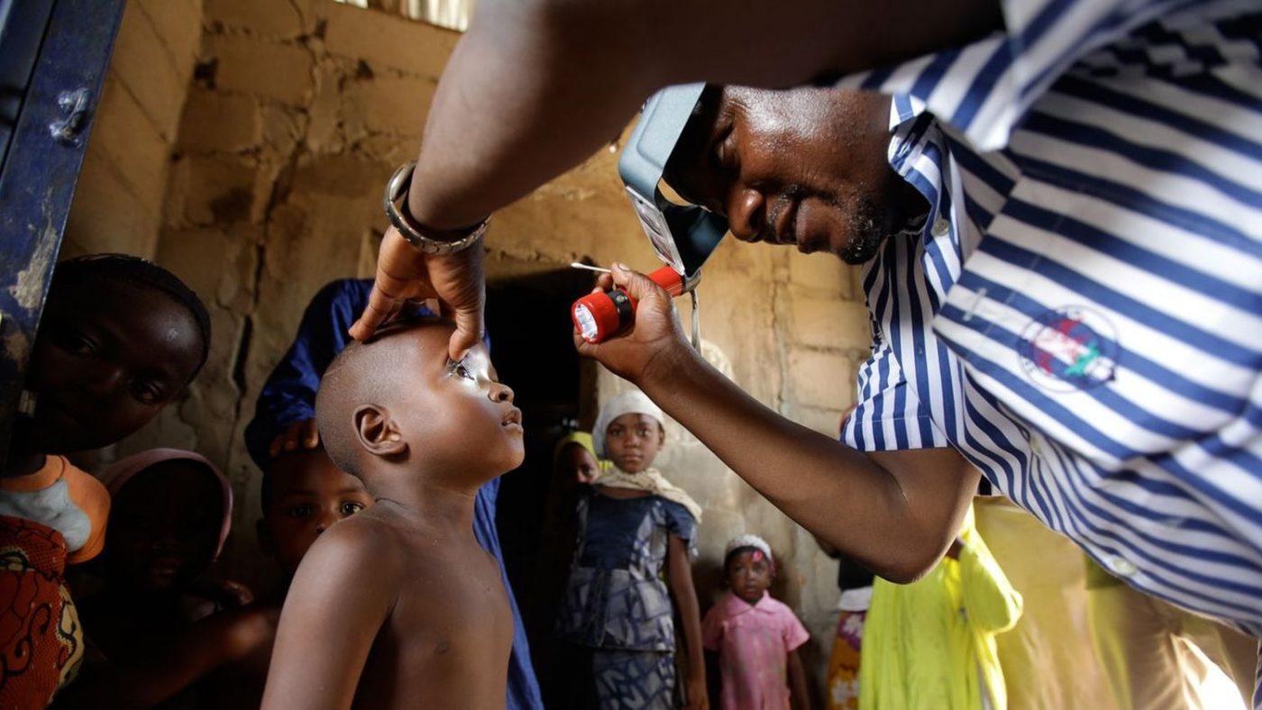 Un uomo punta una torcia sull'occhio di un bambino per visitarlo.