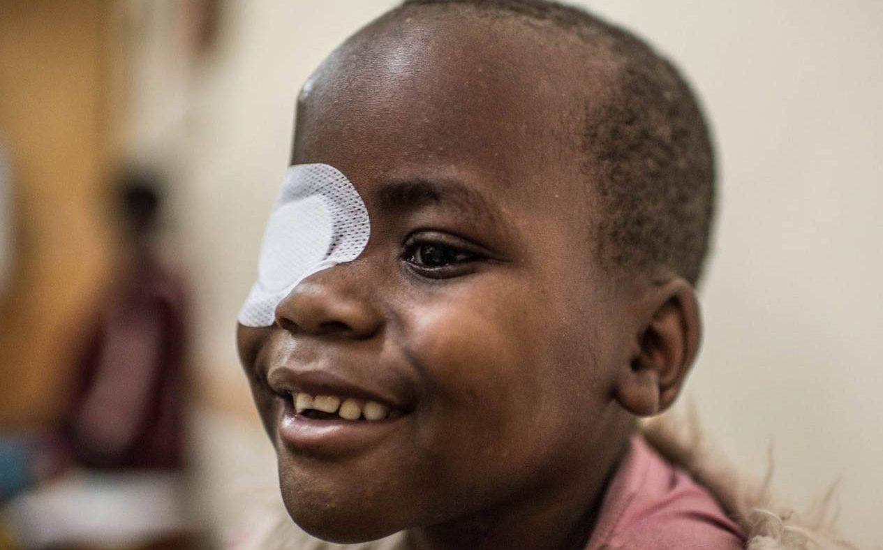 Un bambino con la benda sull'occhio sorride.