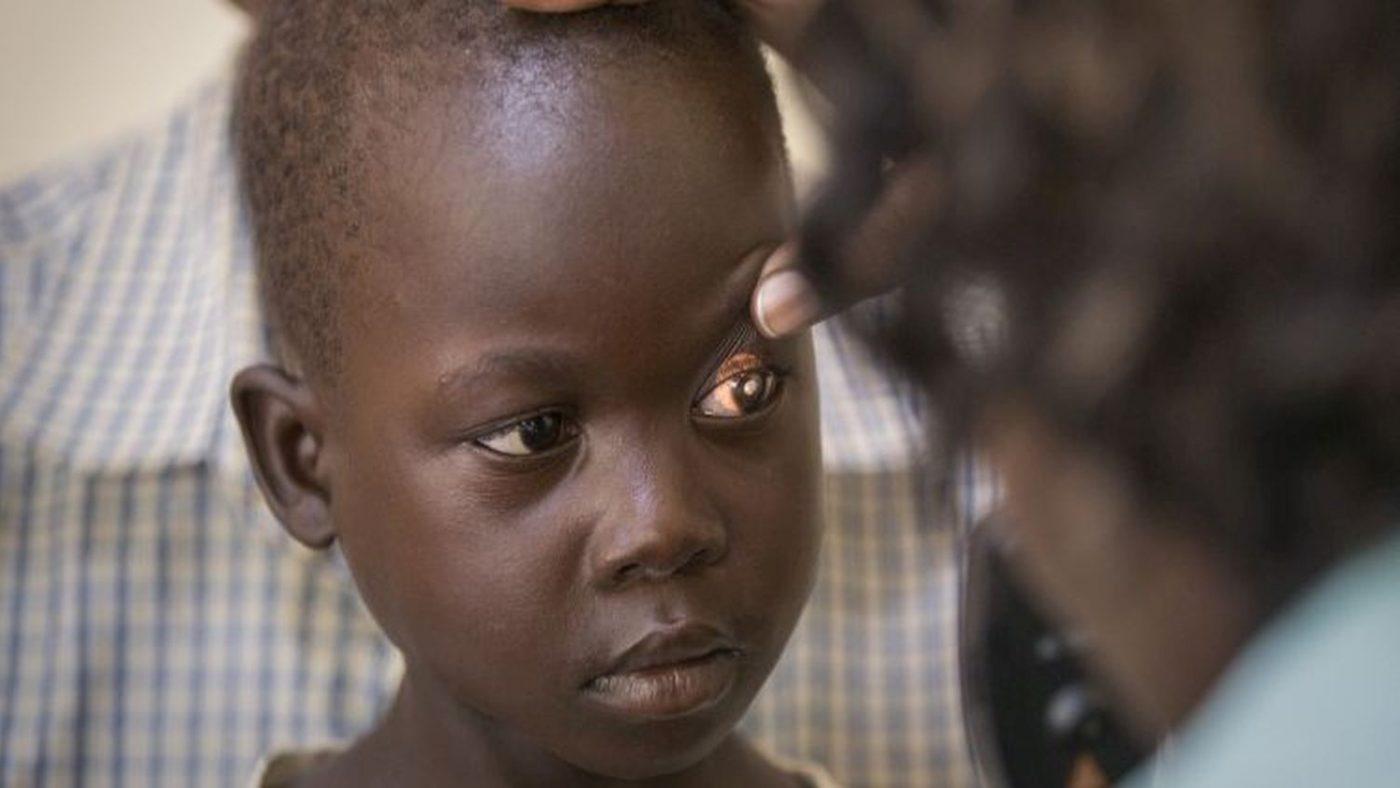 Una bambina riceve una visita agli occhi e il suo occhio sinistro illuminato svela una macchia bianca al suo interno