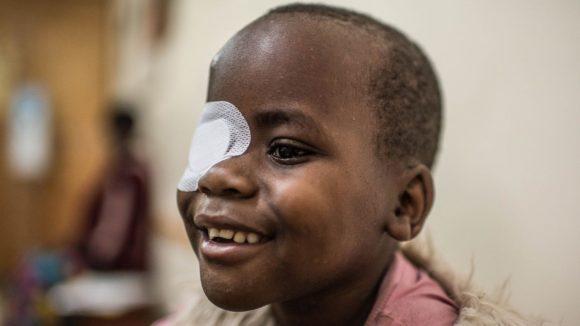 Un bambino con la benda sull'occhio sinistro sorride