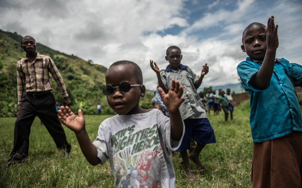 Un bambino con gli occhi protettivi scuri batte le mani per giocare. Intorno a lui altre persone battono le mani
