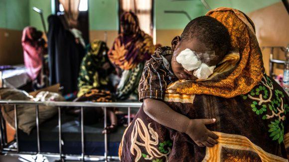 Un bambino con le bende agli occhi è in braccio alla sua mamma