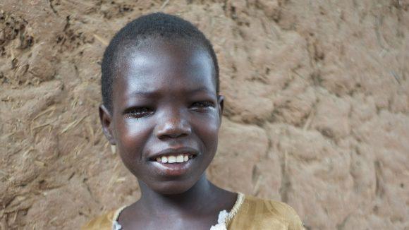 Un bambino come gli occhi gonfi sorride e guarda davanti a sè