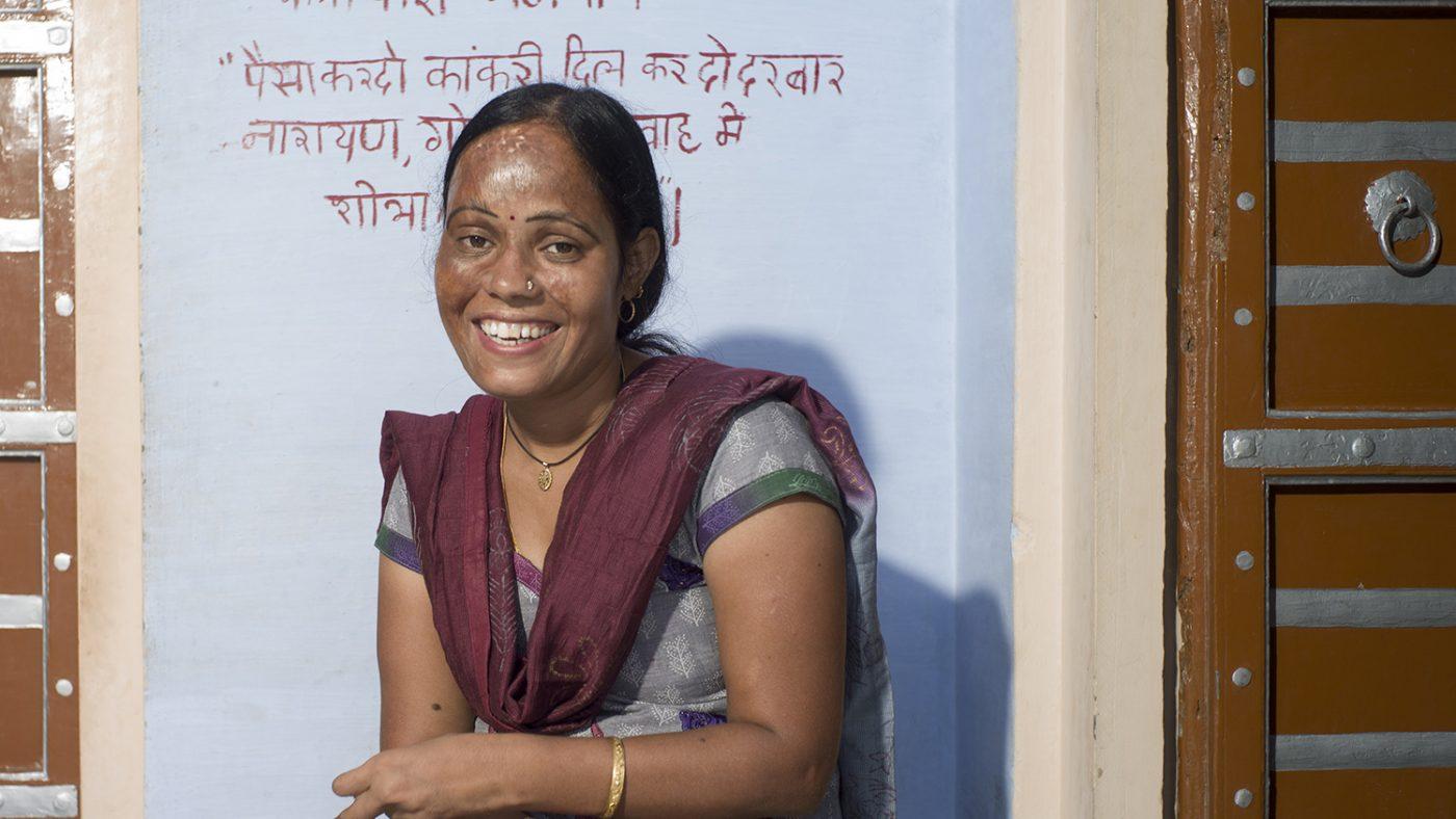 Una donna indiana sfigurata sul volto guarda davanti a sè sorridendo.