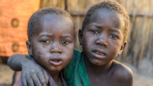 Due fratellini con il volto sporco e pieno di mosche negli occhi guardano la fotocamera.