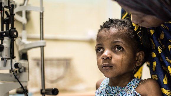 Una bambina con la cataratta sta guardando in alto.