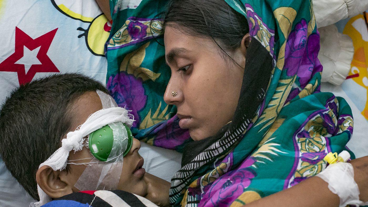 Un mamma sdraiata guarda il suo bambino steso al suo fianco con la benda sull'occhio.