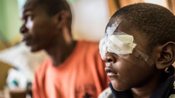 Un bambino, ritratto di profilo, ha la benda su entrambi gli occhi.