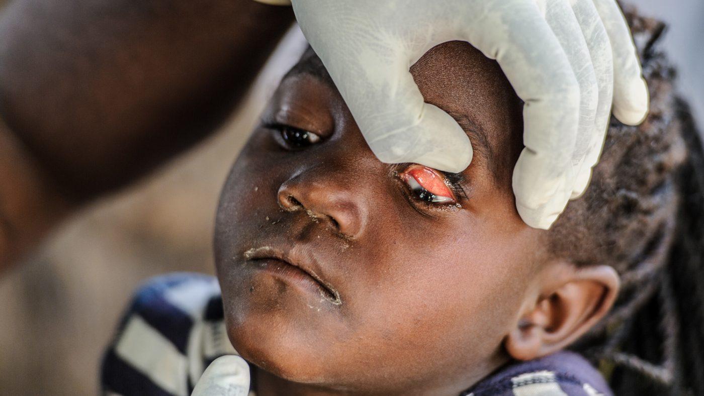 Le mani di un dottore sollevano la palpebra degli occhi di una bambina per visitarla.