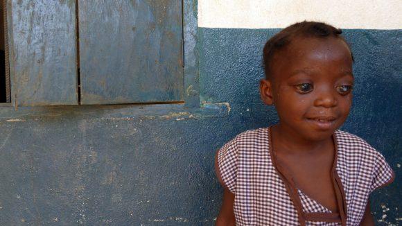 Haja ha gli occhi molto gonfi, sinonimo della sua cecità-