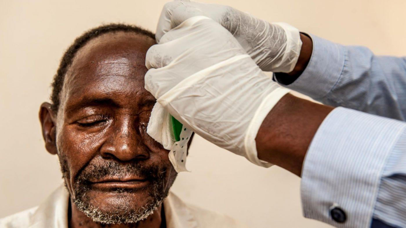 La mano del dottor Gerald rimuove la benda dall'occhio di WInesi.