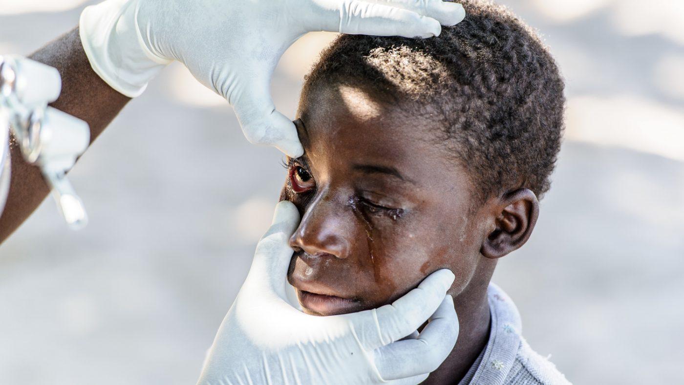 Nananga viene visitato agli occhi mentre gli scendono le lacrime causate dal dolore del tracoma.