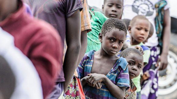 Dei bambini affetti dal tracoma aspettano in fila guardando davanti a loro.