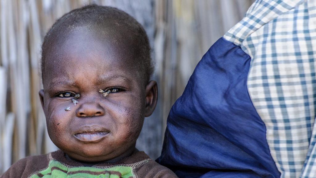 Lubasi ha le mosche in faccia e soffre di tracoma.