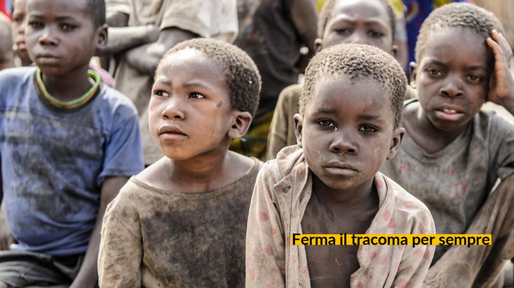 Dei bambini impolverati colpiti dal tracoma.