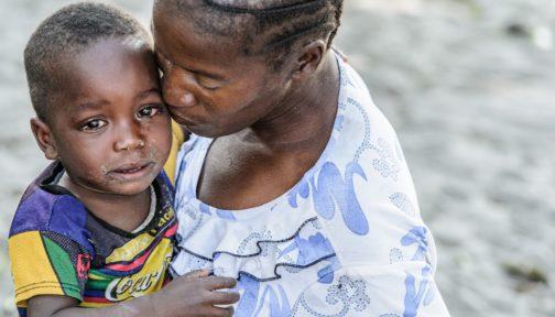 Un bambino con gli occhi gonfi a causa del tracoma abbraccia la sua mamma.