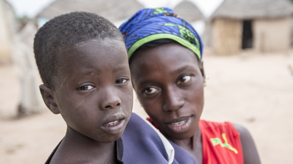 Mamma Manue guarda suo figlio Baba Car che soffre di tracoma.