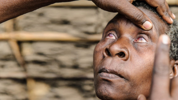A woman with trachoma has her eyes examined.