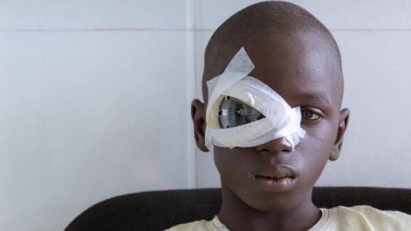 Un bambino in primo piano con la benda sull'occhio.