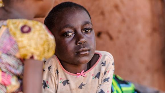 Una bambina con gli occhi gonfi.