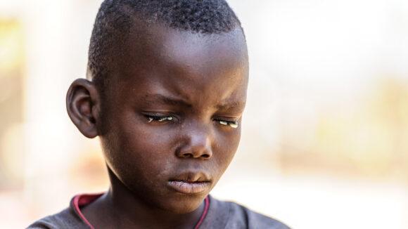 Bretty non riesce ad aprire gli occhi per il dolore causato dal tracoma.