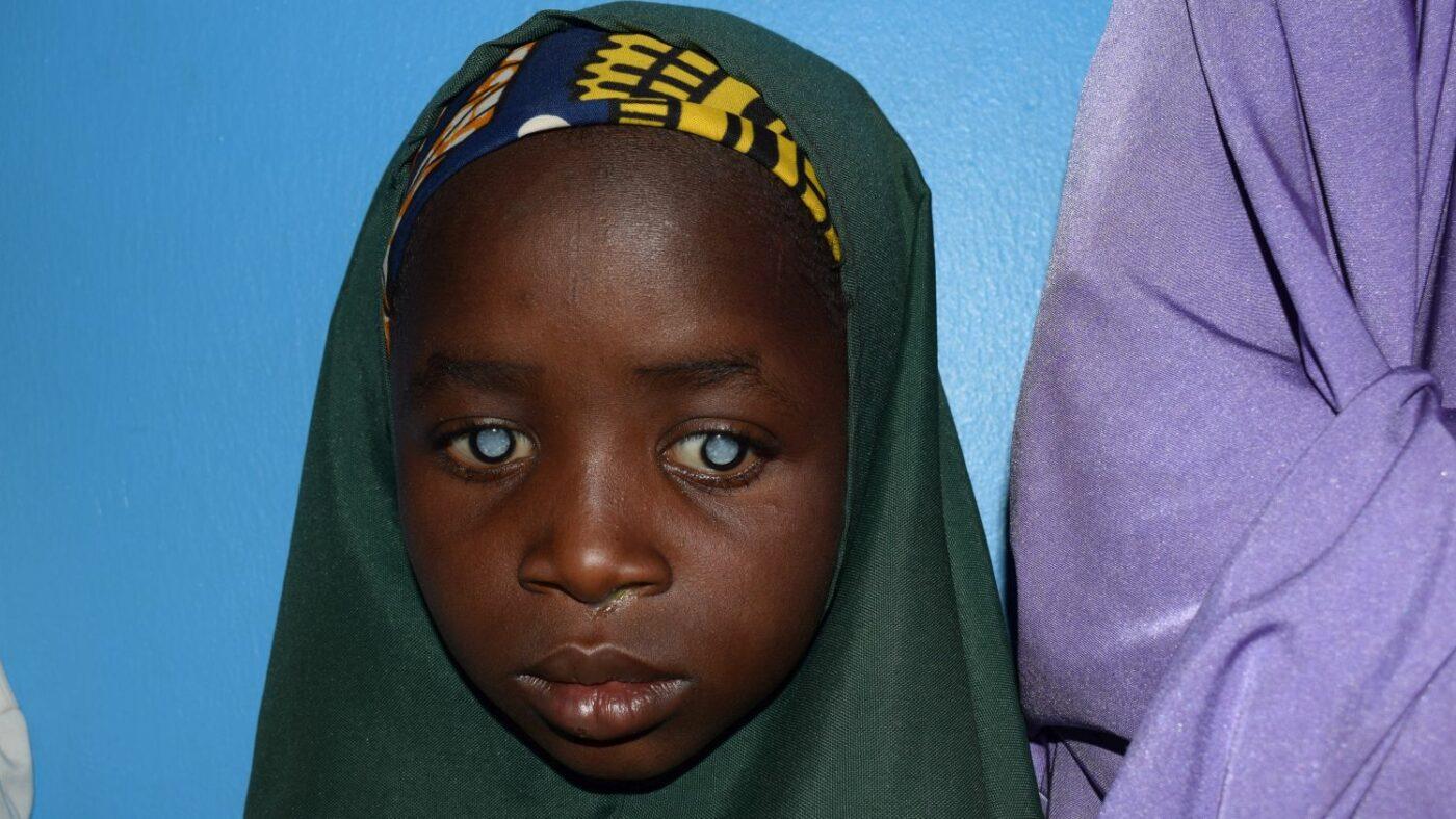 Primo piano di Khadija con la cataratta ad entrambi gli occhi.