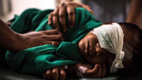 bambino dopo operazione cataratta