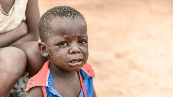 chabota piange con le mosche sugli occhi